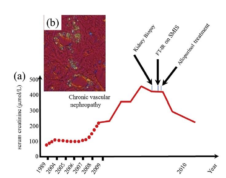 Evolution de la fonction rénale donnée par le sérum de créatinine